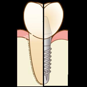 歯とインプラントの違い