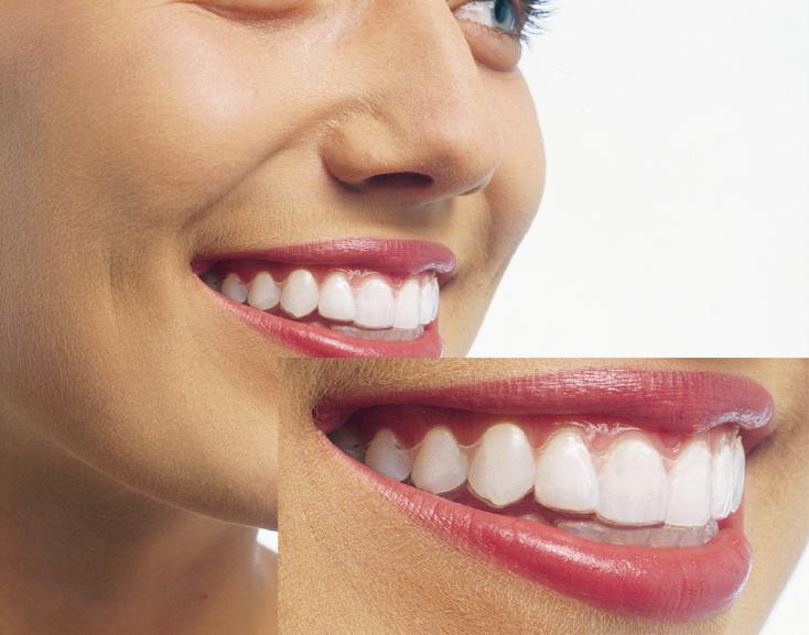 佐世保 大串歯科 歯周病 インプラント 審美歯科