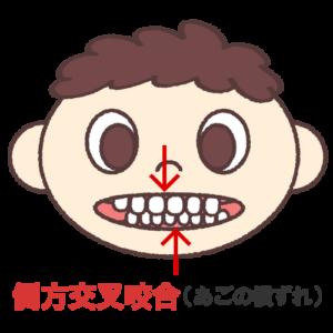 歯のズレ、顎関節症