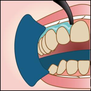 ホワイトニング歯肉保護