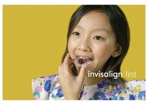 子供の矯正に最適なマウスピース型矯正装置(インビザライン)